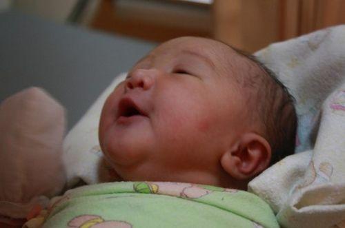 Dermatographia pada Bayi dan Anak alami ke area yang