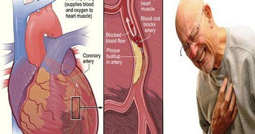 Gejala Penyakit Jantung dan Angina memastikan semuanya